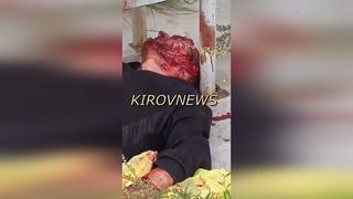 Пьяный мужчина упал на угол бордюра головой.