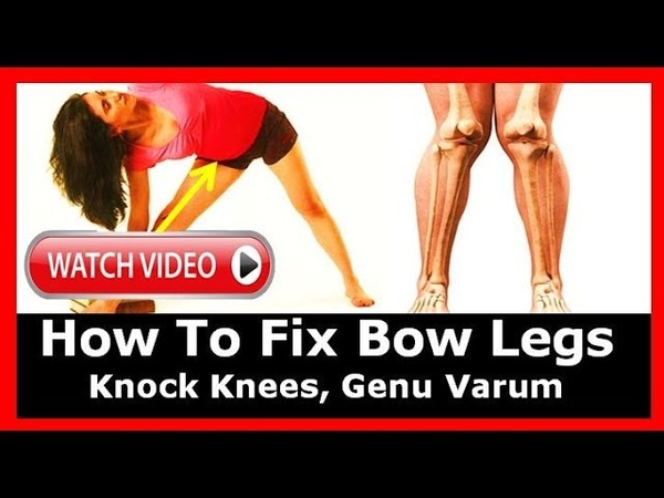 How To Fix Bow Legs, Bow Legged, Knock Knees, Genu Varum, Bow Legs, How To Straighten Bow Legs