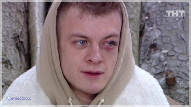Откуда у Макса Мелиника фингал под глазом?