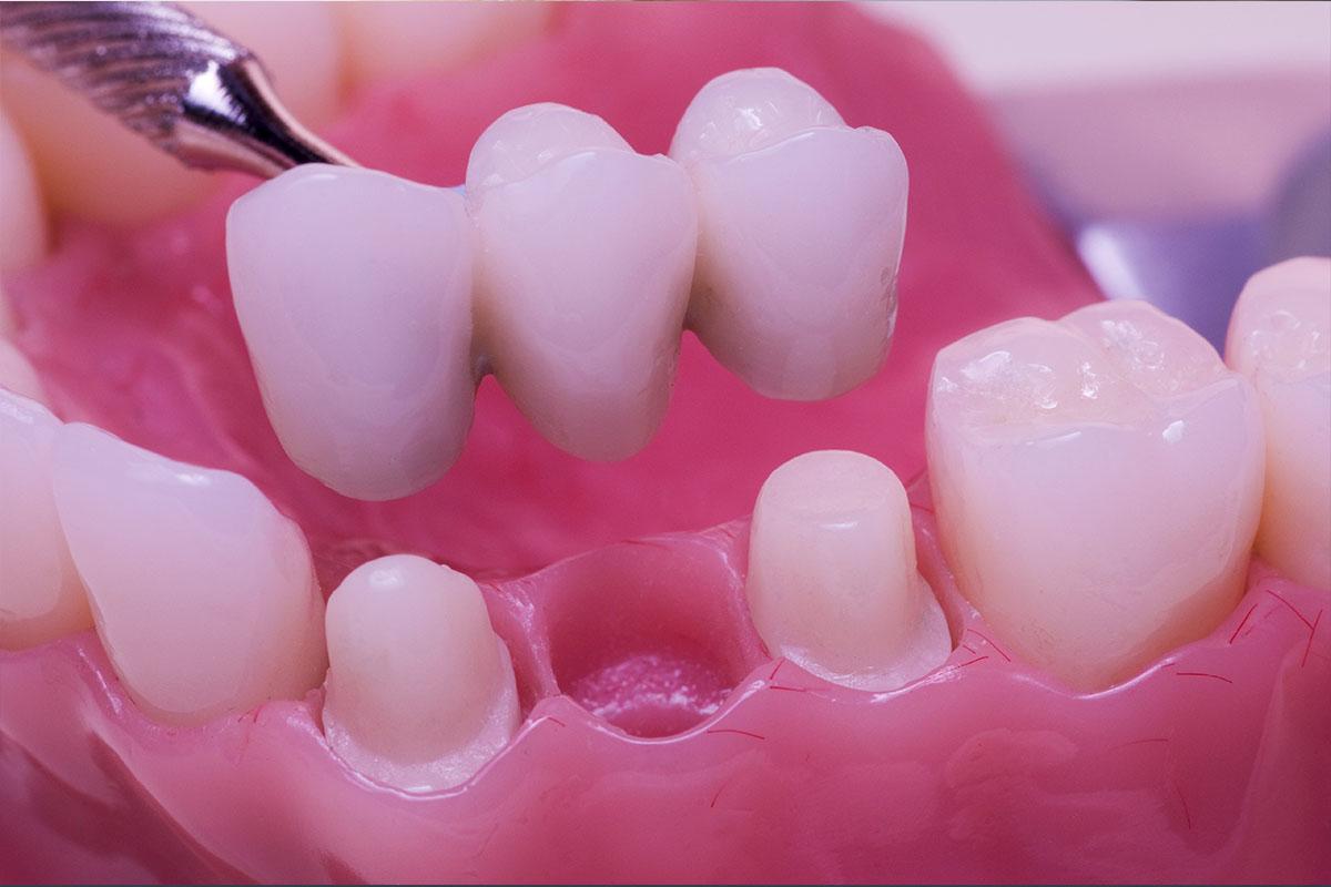 Видов зубных протезов очень много