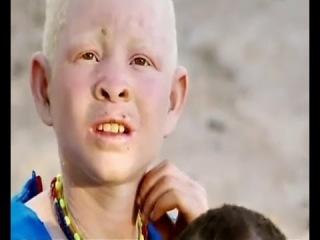 Судьба альбиносов - Моя Ужасная История (18 серия)