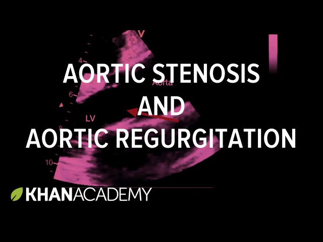 Aortic stenosis and aortic regurgitation Circulatory System and Disease NCLEX RN Khan Academy