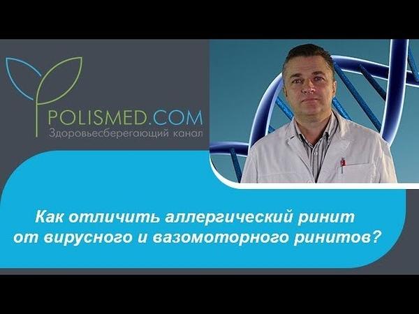 Как отличить аллергический ринит от вирусного (инфекционного) и вазомоторного ринитов?