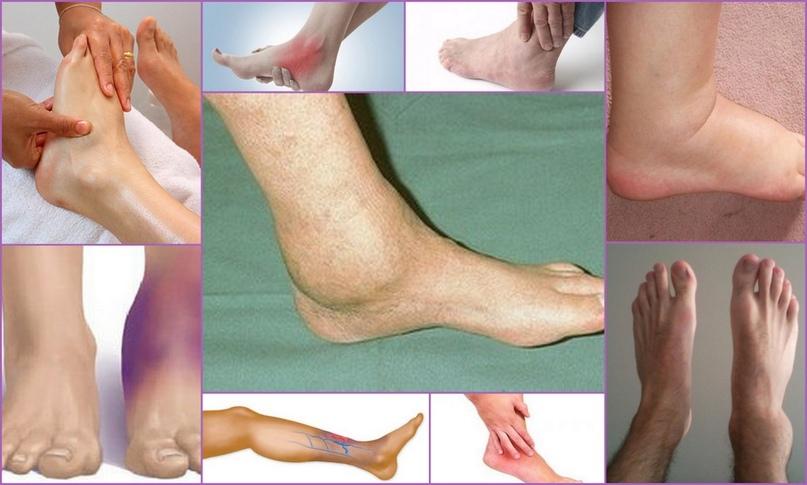 диета при остеоартрозе голеностопного сустава