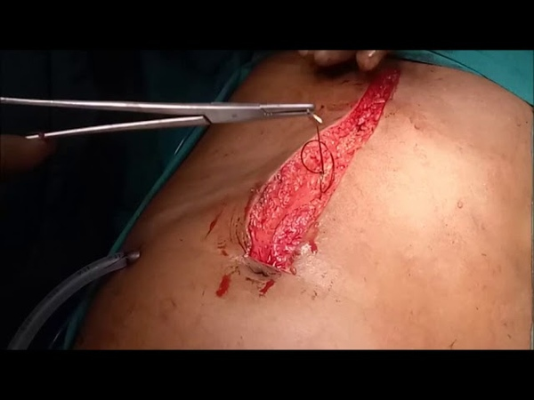 CLOSURE of UPPER MIDLINE LAPAROTOMY WOUND following Duodenal Perforation SKP Surgery Videos