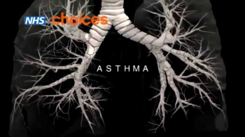 Бронхиальная астма описание причины классификация Медицинская анимация