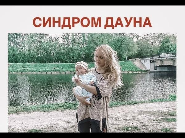 Скрининг узи. Синдром Дауна. Прокол. Моя история беременности