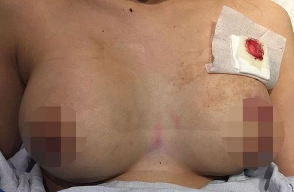 В Торонто девушку от смертельного огнестрельного ранения спасла силиконовая грудь Она шла по одной из улиц города, когда почувствовала «жжение и боль» в своей левой груди. Удалив силиконовые